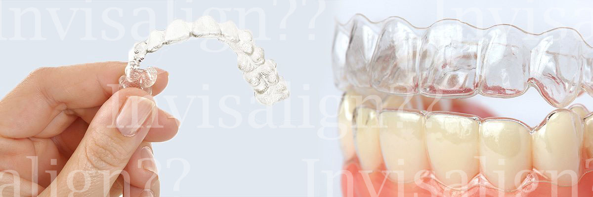 Fountain Inn Does Invisalign® Really Work?